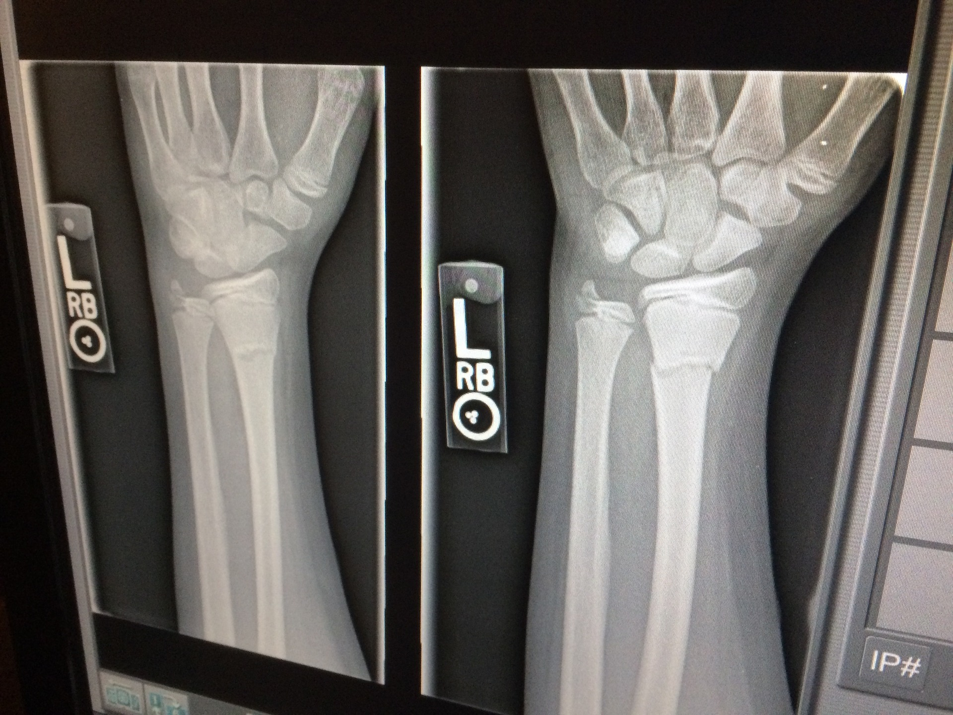 Most Common Types of Bone Fractures After a Car Accident