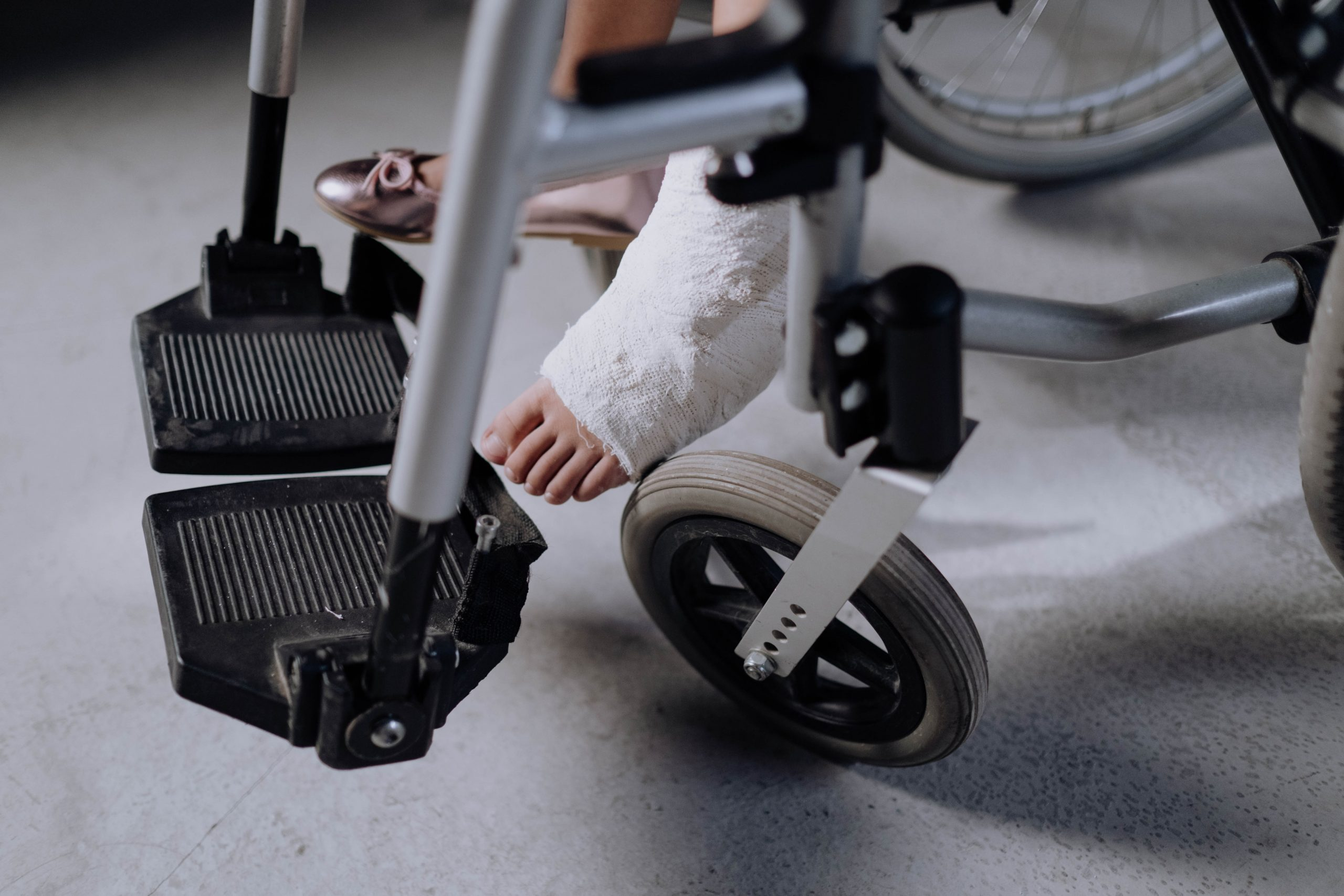 Can Burn Injuries Qualify Me for Delaware Disability Benefits?